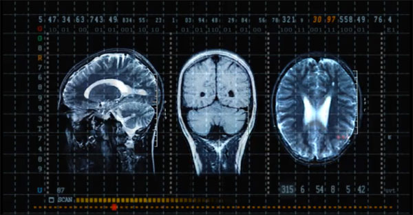 Brain-scan-static-fascinate-personality-test